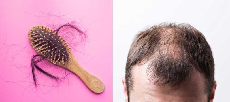 Stam Plus Linea alopecia diradamento